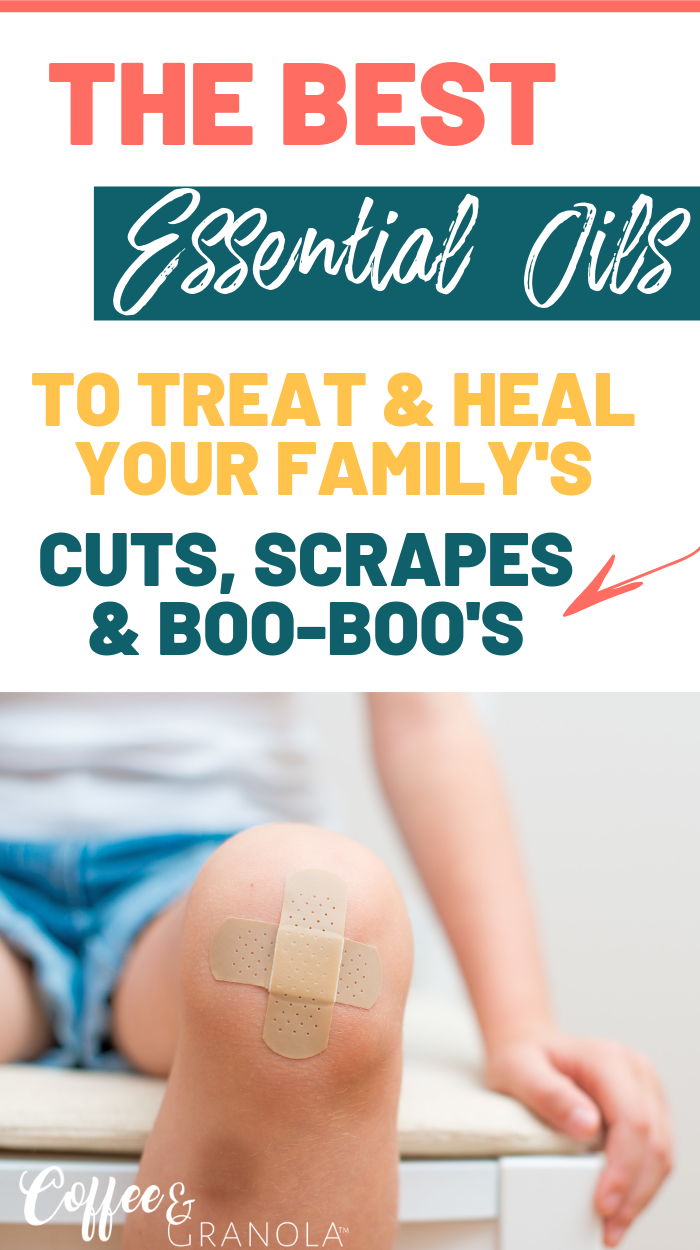 Treating your child's cuts and scrapes with Neosporin isn't the healthiest choice. These natural and safe essential oils will help soothe and heal your family's boo-boo's with ease! #kidsandparenting #natural #naturalremedies #essentialoils #nontoxic